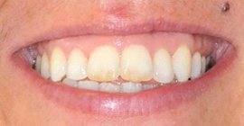 Correct Teeth with Invisalign