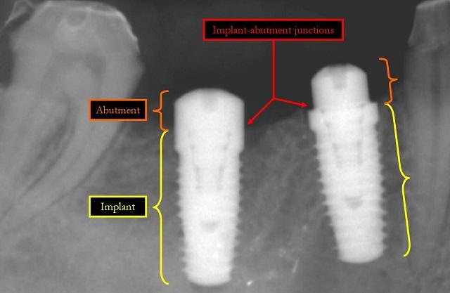 dental implants x-ray